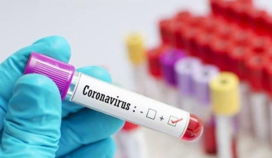 coronavirus (9)