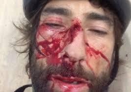 Vittorio Brumotti Incidente2014